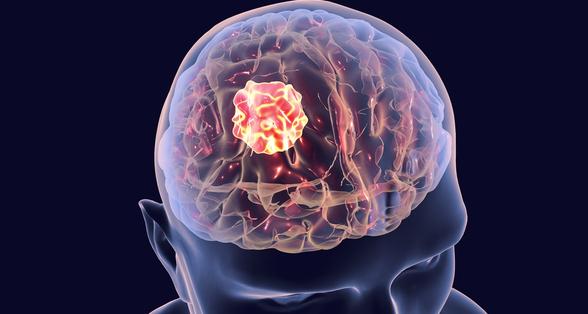 La radiothérapie dans le traitement des glioblastomes