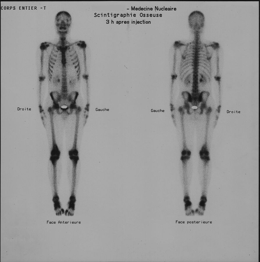 Scintigraphie osseuse diagnostic cancer de prostate
