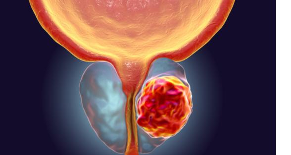 Le diagnostic, classification et différents stades du cancer de la prostate