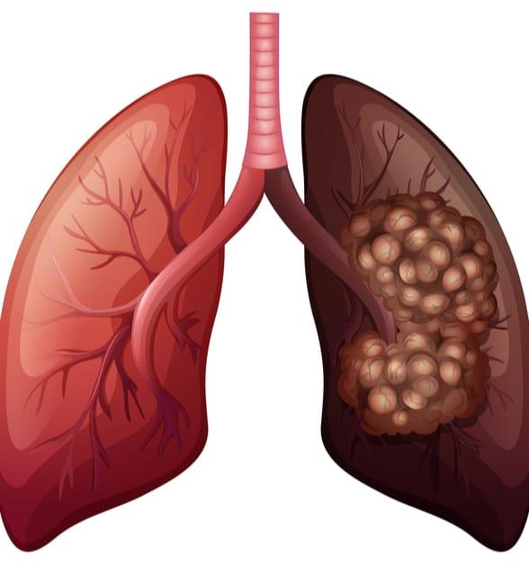 Illustration d'un poumon sain et d'un poumon atteint