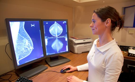 Mammographie sein